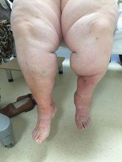 verursacht rektozele schmerzen